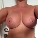 01 breast lift cyprus after