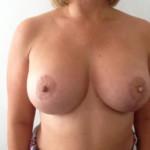01 breast lift cyrpus 11 weeks