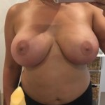 02 breast lift abroad after