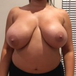 02 breast lift abroad before