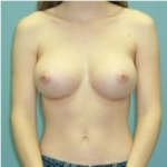03 breast augmentation abroad after