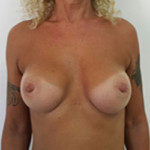 04 breast augmentation abroad after