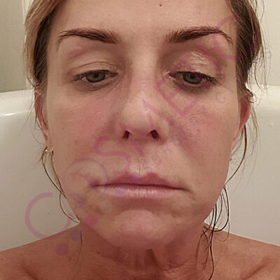 cosmetic surgery abroad facelift before