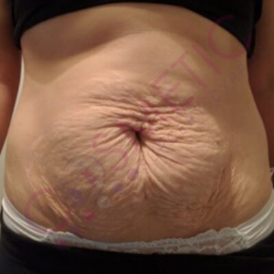 tummy tuck cosmetic surgery abroad
