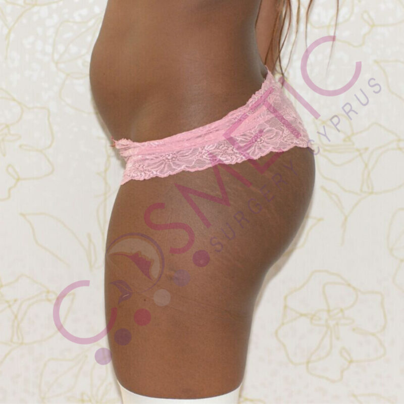 Liposuction Cosmetic Surgery Abroad