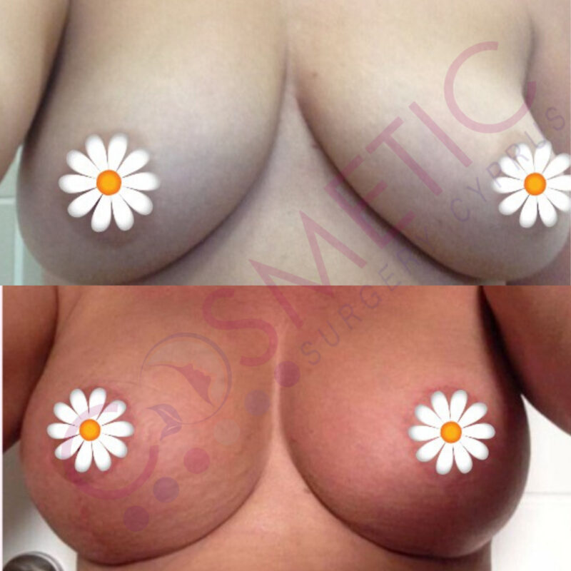 Breast Lift and Implant Cosmetic Surgery Abroad