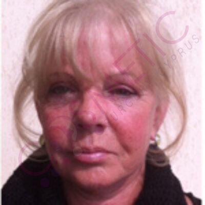 cosmetic surgery abroad facelift after