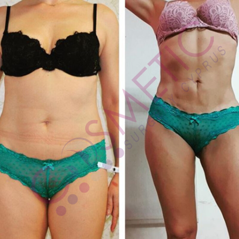 Vaser Liposuction Cosmetic Surgery Abroad