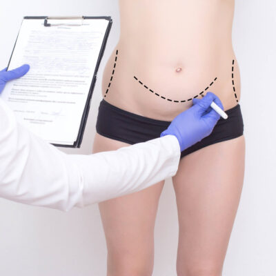 Tummy Tuck (Abdominoplasty) Gallery