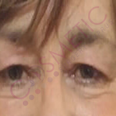 eyelid surgery abroad cyprus before