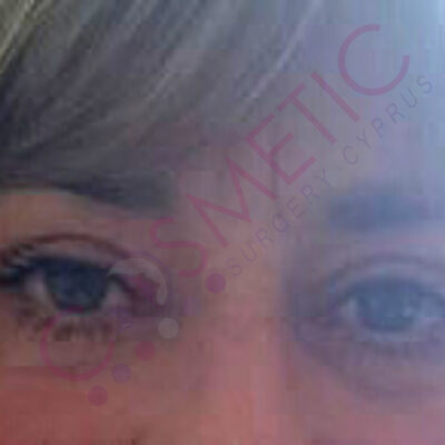 eyelid surgery abroad cyprus after