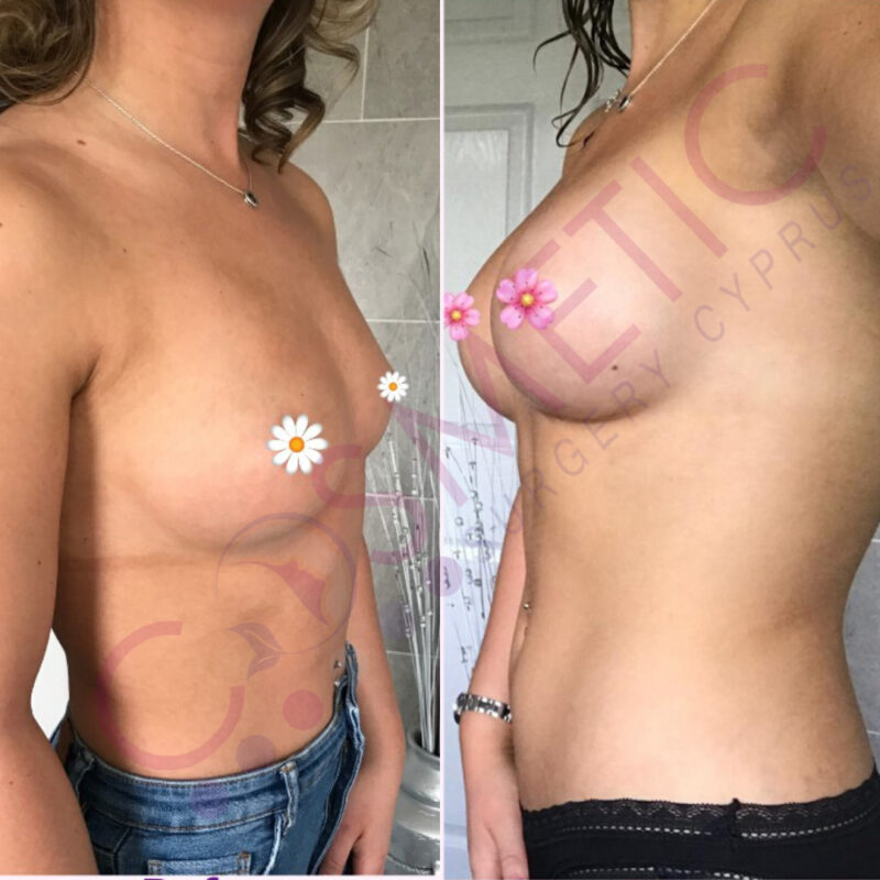 Boob Job Before and After Cosmetic Surgery Abroad