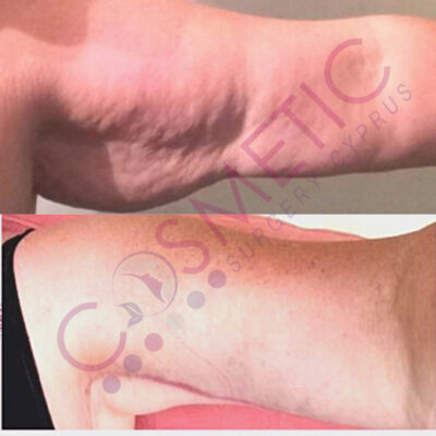 Arm Lift Before and After Cosmetic Surgery Abroad