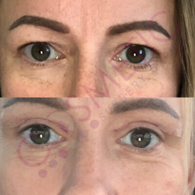 Cosmetic surgery abroad upper blepharoplasty eyelid