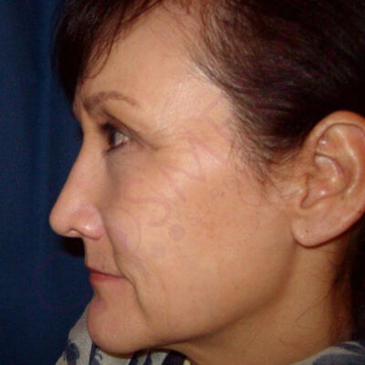 rhinoplasty nose job cosmetic surgery abroad