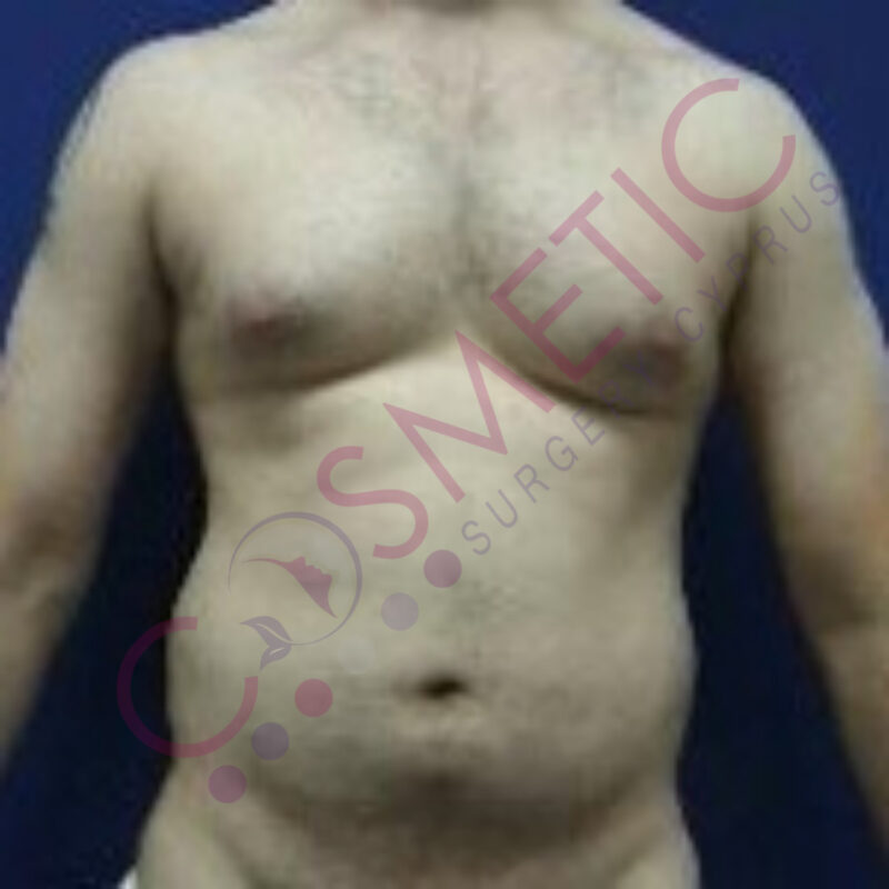 Liposuction Male Cosmetic Surgery abroad
