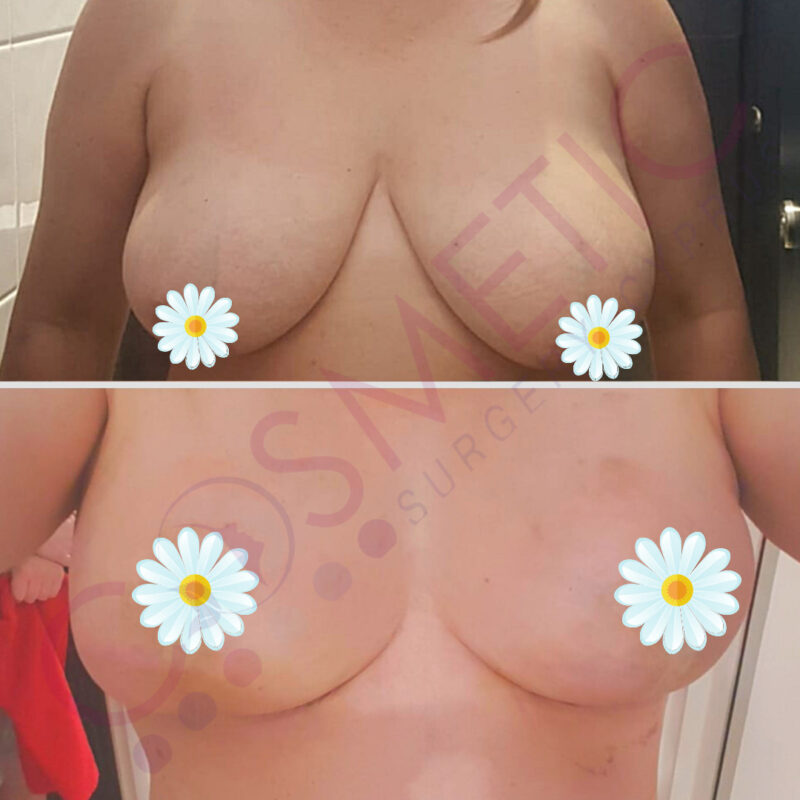 breast reduction cosmetic surgery abroad