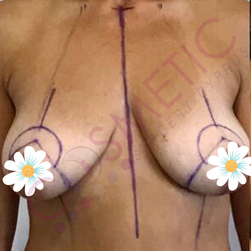 Breast Lift Cosmetic Surgery Abroad