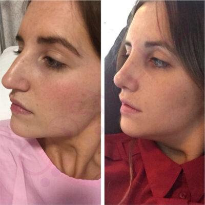 rhinoplasty nose job cosmetic surgery abroad