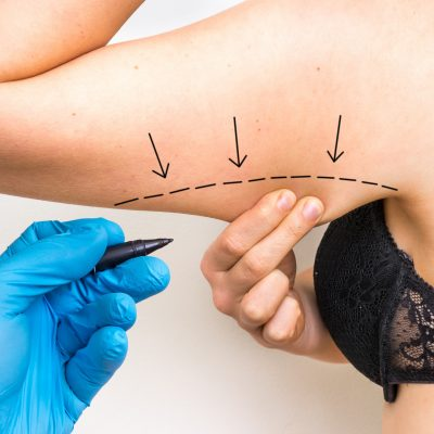 Plastic surgery doctor draw line on patient arm - cosmetic surgery abroad, arm lift brachioplasty