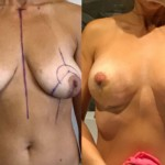 breast lift abroad before and after
