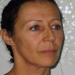 eyelid surgery abroad cyprus after 2