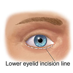Lower eyelid surgery in Cyprus