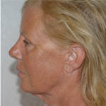 lower face neck lift surgery before