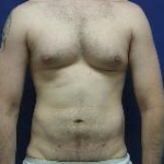 male liposuction abroad after