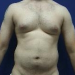 male liposuction abroad before