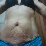 mini tummy tuck abroad before