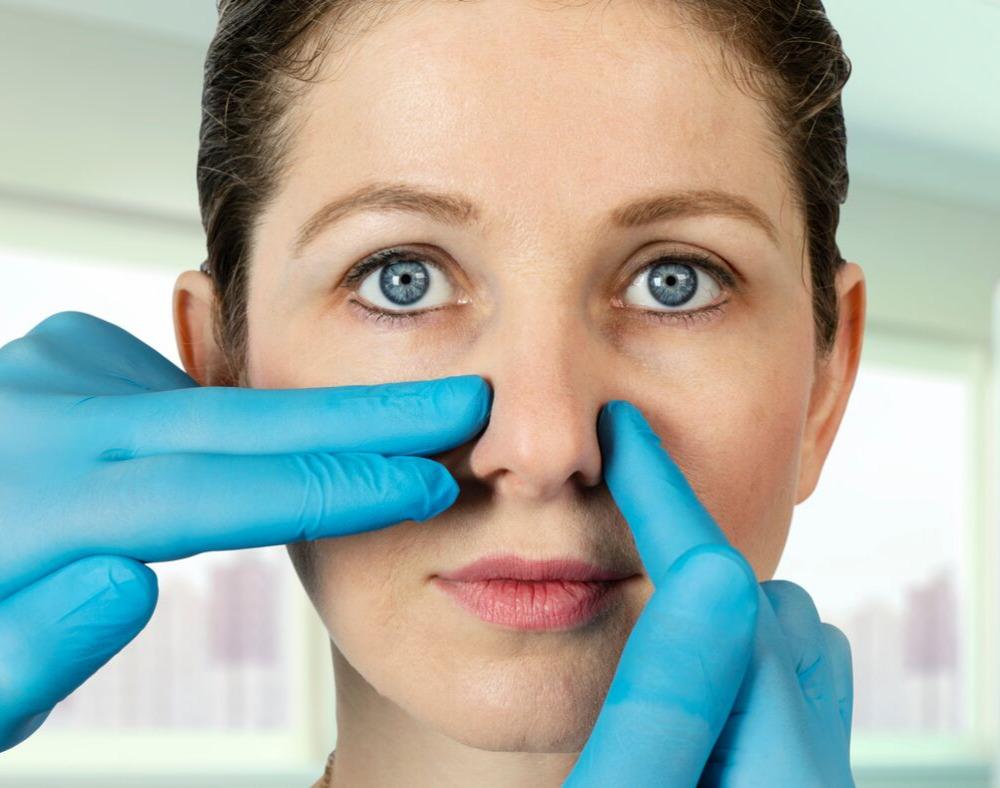 Nose Surgery (Rhinoplasty) Gallery