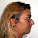 nose job abroad cyprus after