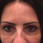 upper eyelid surgery cyprus after