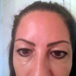upper eyelid surgery cyprus before